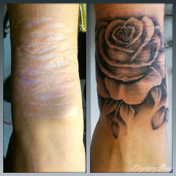 Tatuaże Maskujące Blizny