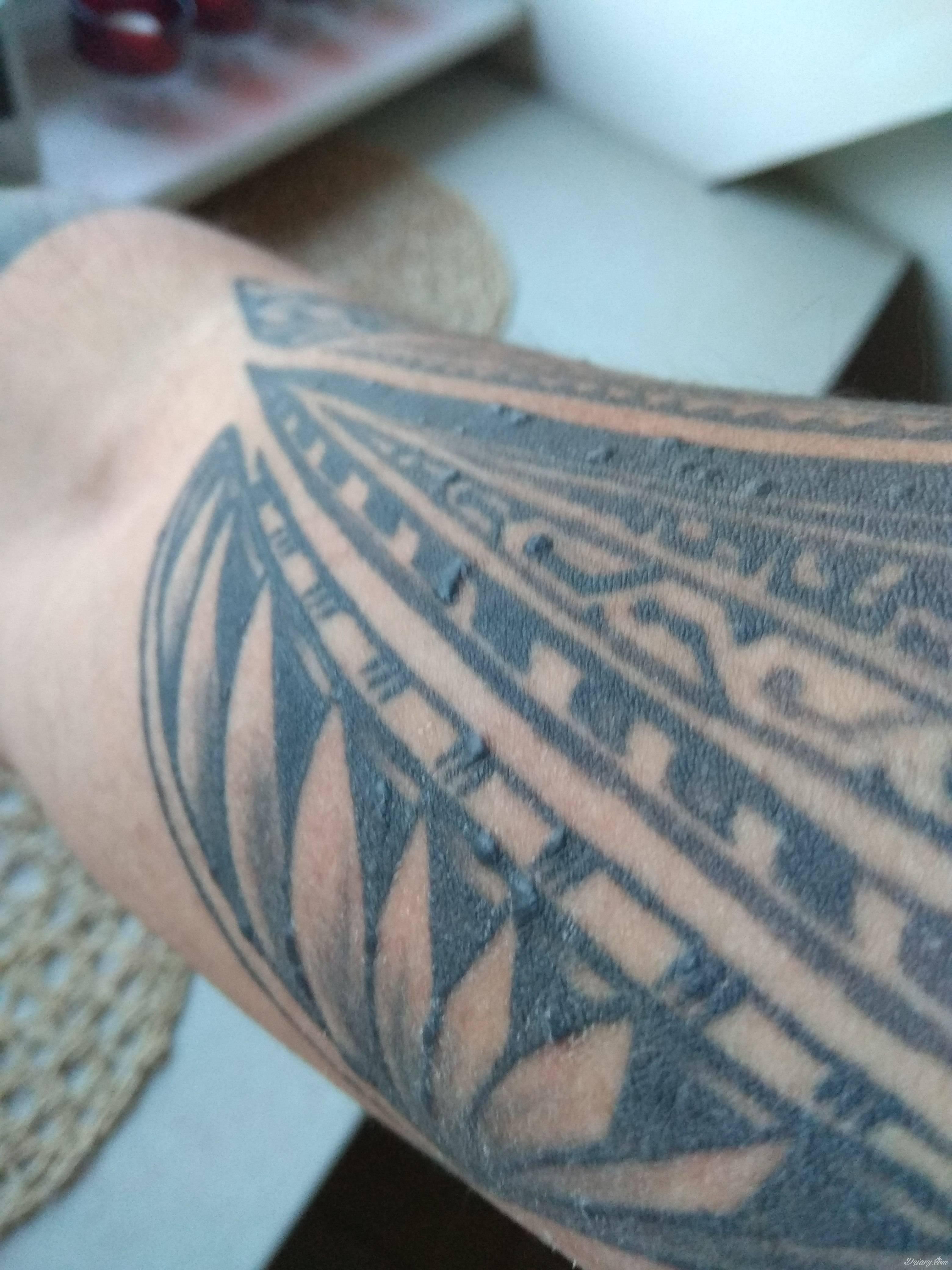 Alergia Na Tusz Pomocy Tatuaże Forum