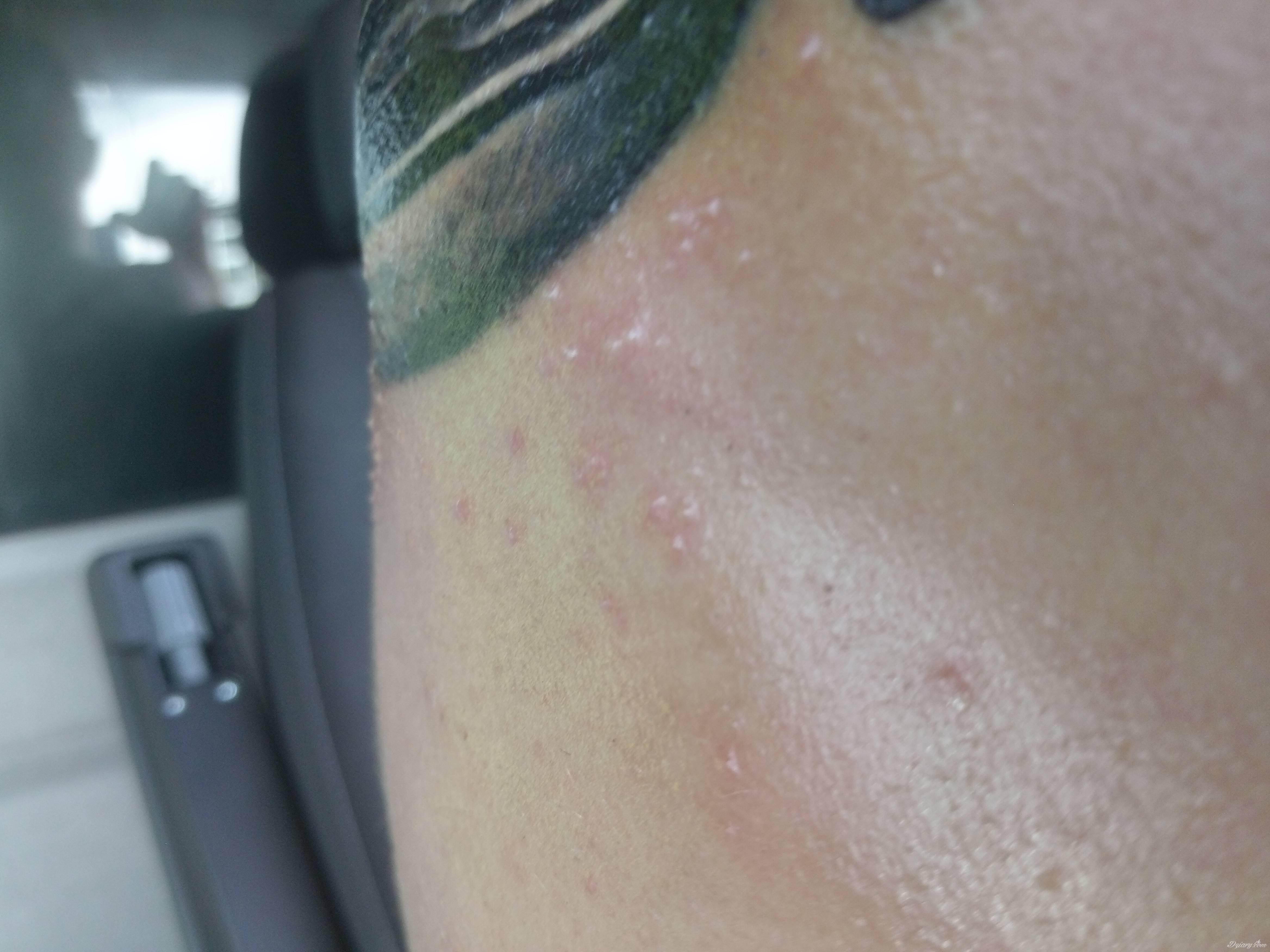 Dziwne Krostki Na świeżym Tatuażu Pomocy Tatuaże Forum