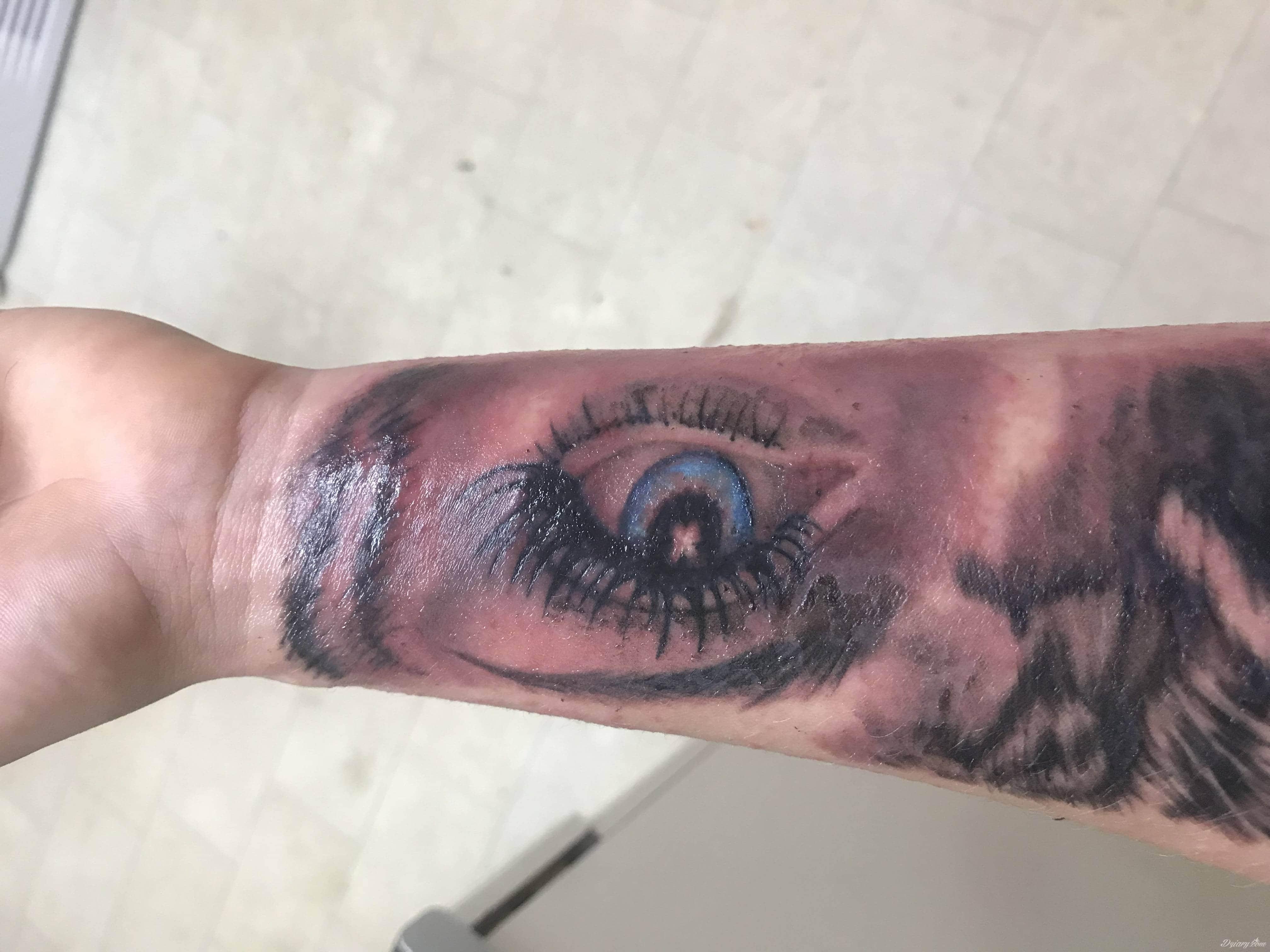 Reakcja Alergiczna Pomozcie Tatuaże Forum