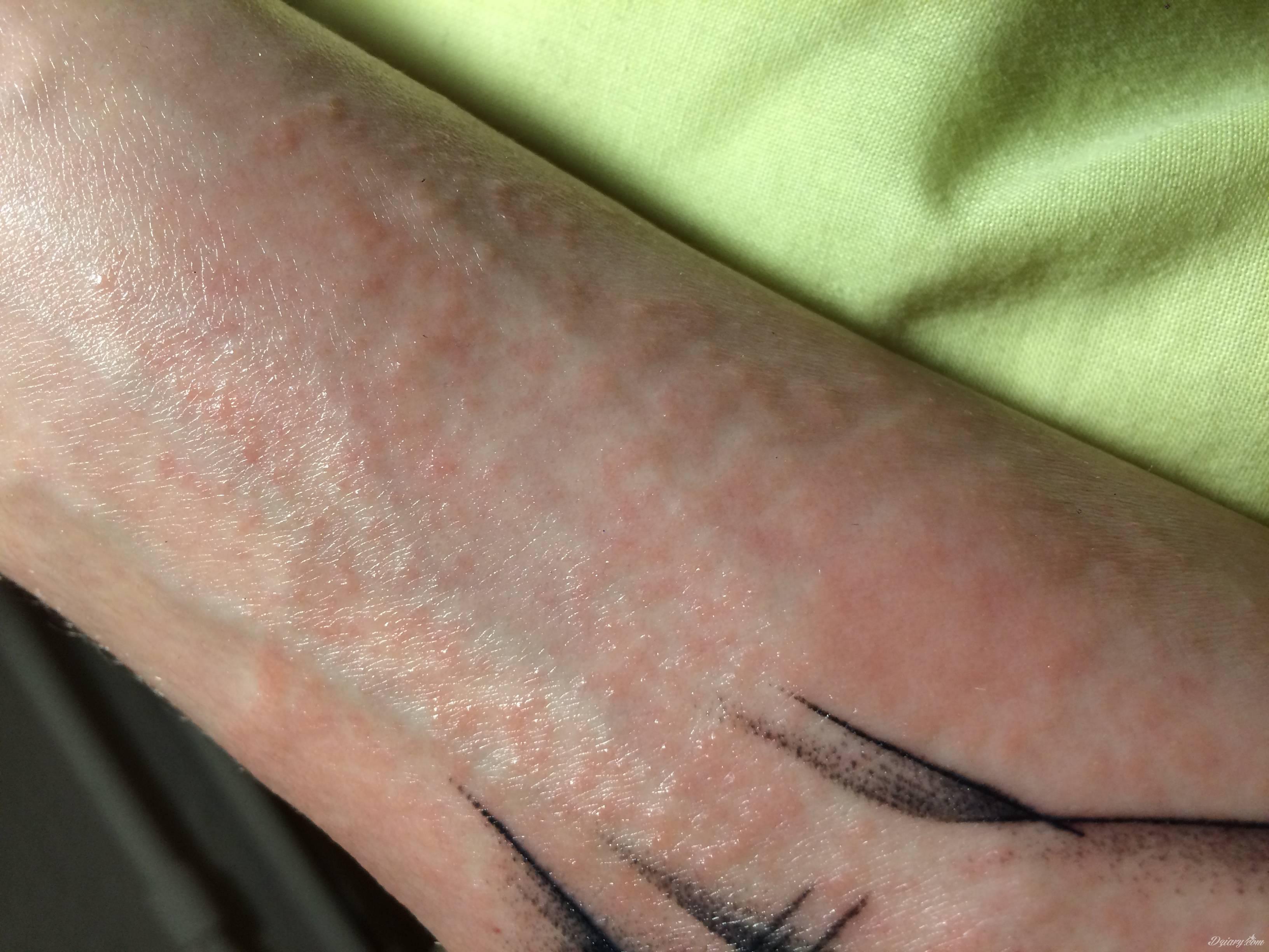 Uczulenie Na Nowym Tatuażu Tatuaże Forum