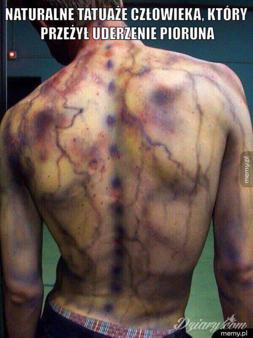 Naturalne tatuaże człowieka który przeżył uderzenie piorunem